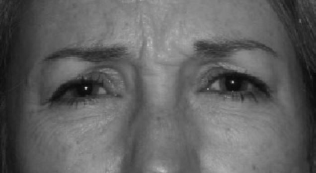 Wrinkles prior to BOTOX injection
