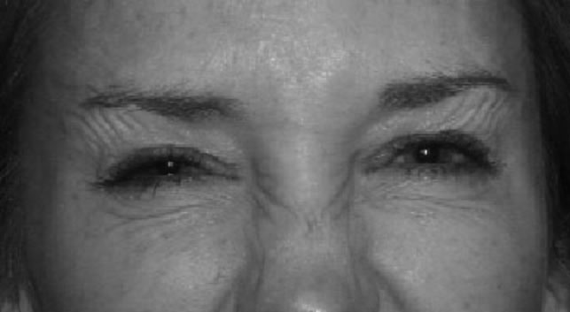 Wrinkles after treatment
