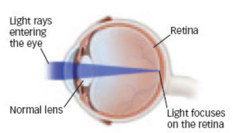Light Rays Entering an Eye with normal lens